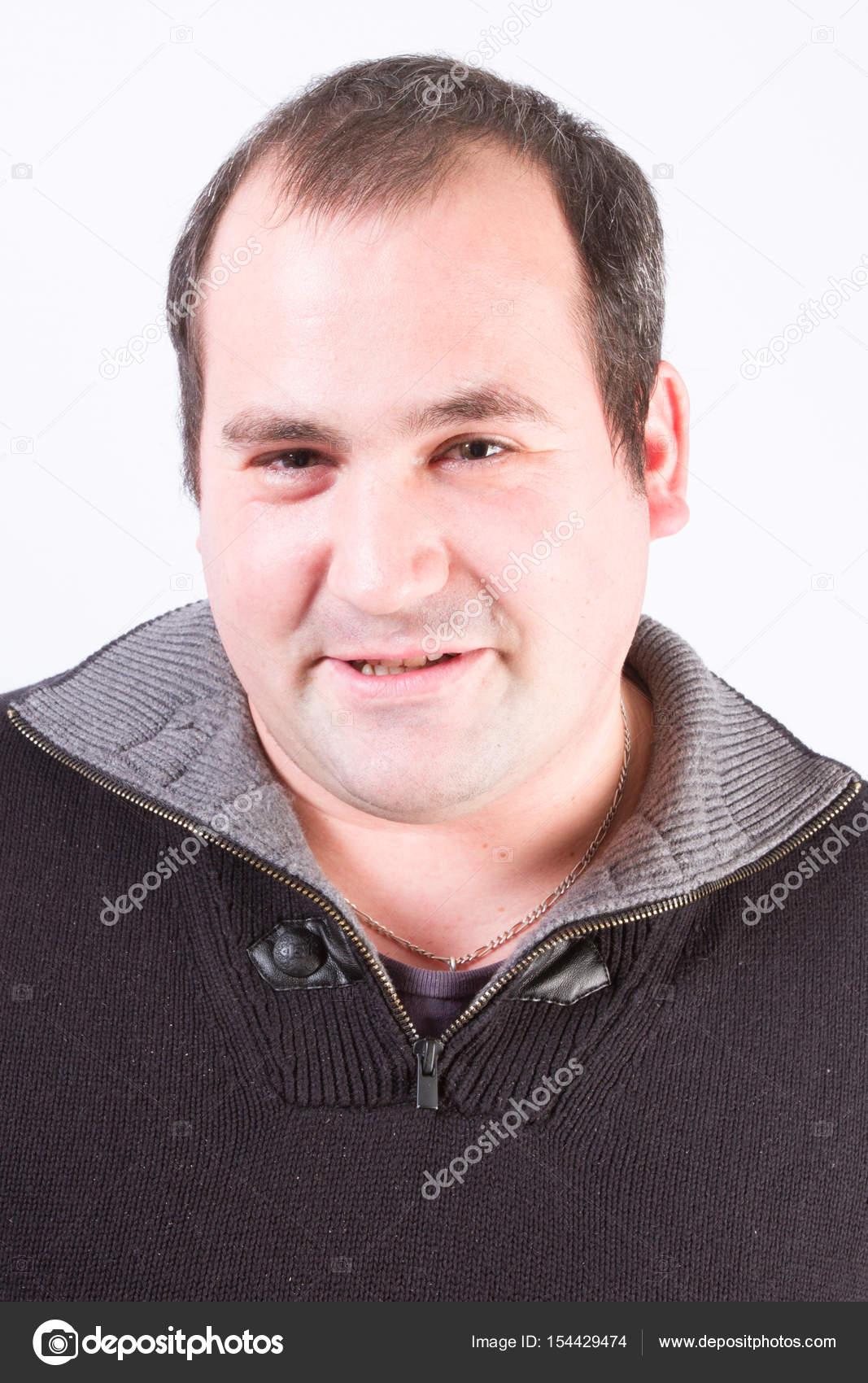 Mann Des Gesichts Der Vierziger Jahre Mit Dünnen Haaren Stockfoto