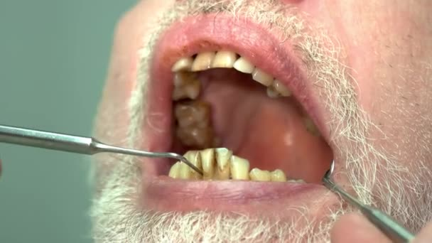 Patient of dentist, bad teeth.