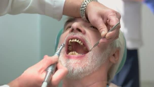 Dentist polishing teeth.