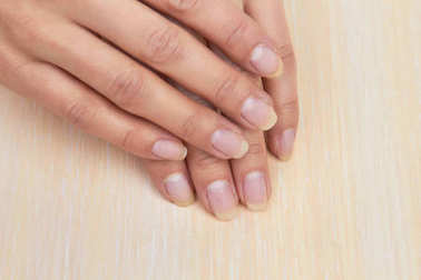 Female hands with not polished nails.
