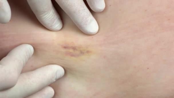Ärzte legen Handschuhe an, um Haut des Patienten zu untersuchen.