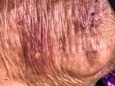 close up old skin with lesion