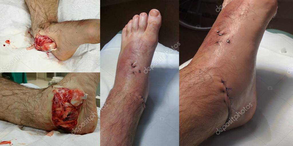 Open ankle sprain before and after surgery.