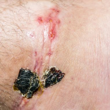 Scar and scab (eschar) on the leg.