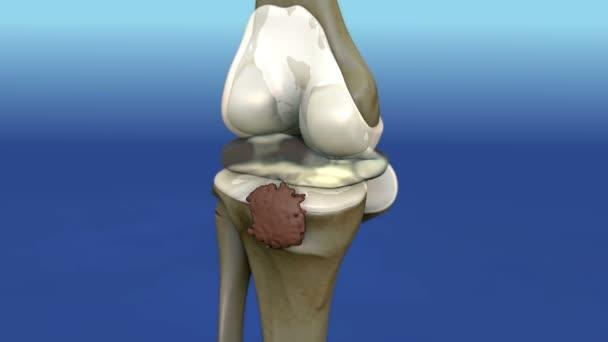 pain illustration knee side,