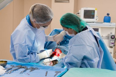 Surgical team performing surgery operation. Doctor  performing s