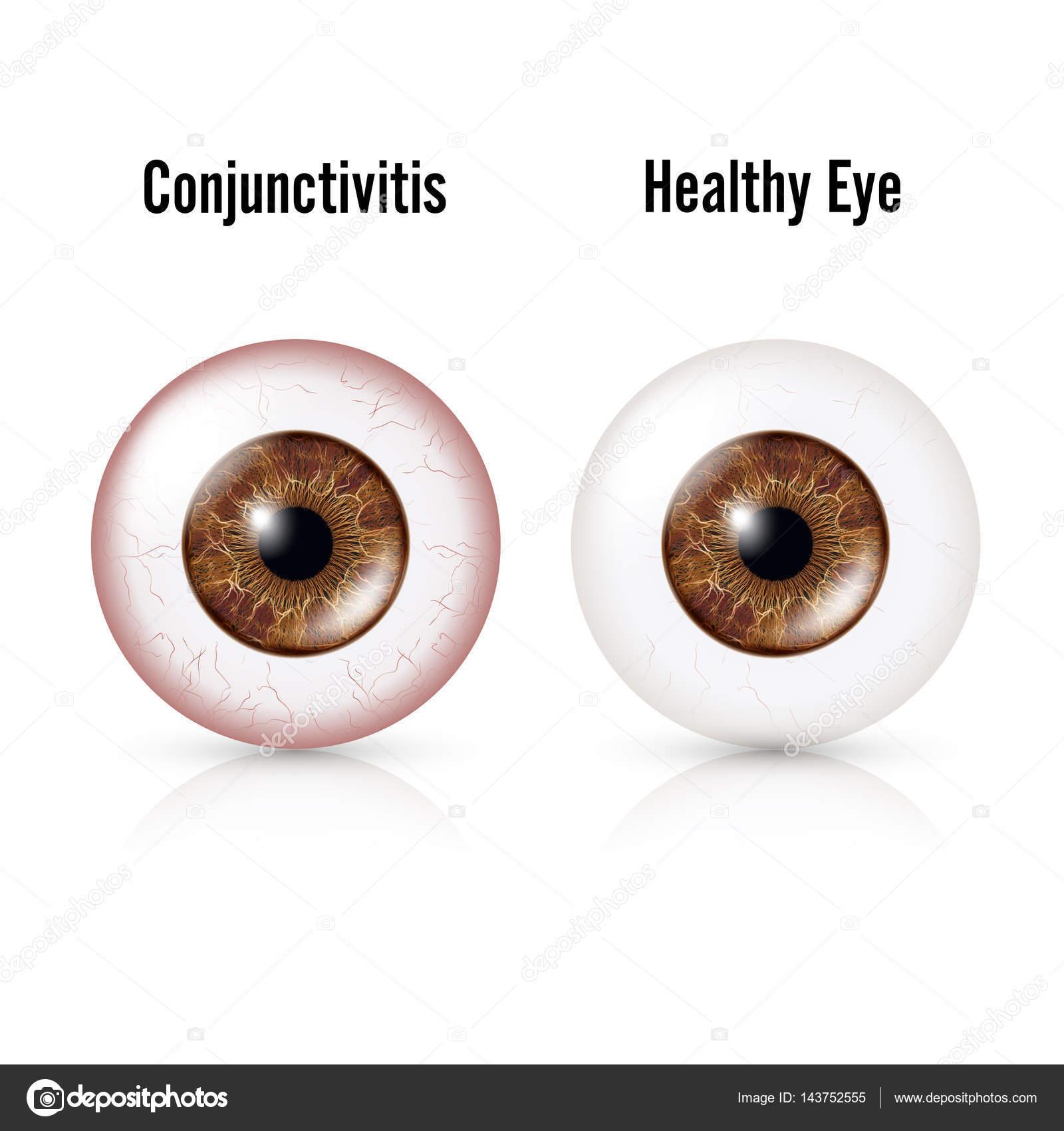 Conjuntivitis. Ojo rojo. Ojo sano y el globo ocular con ...