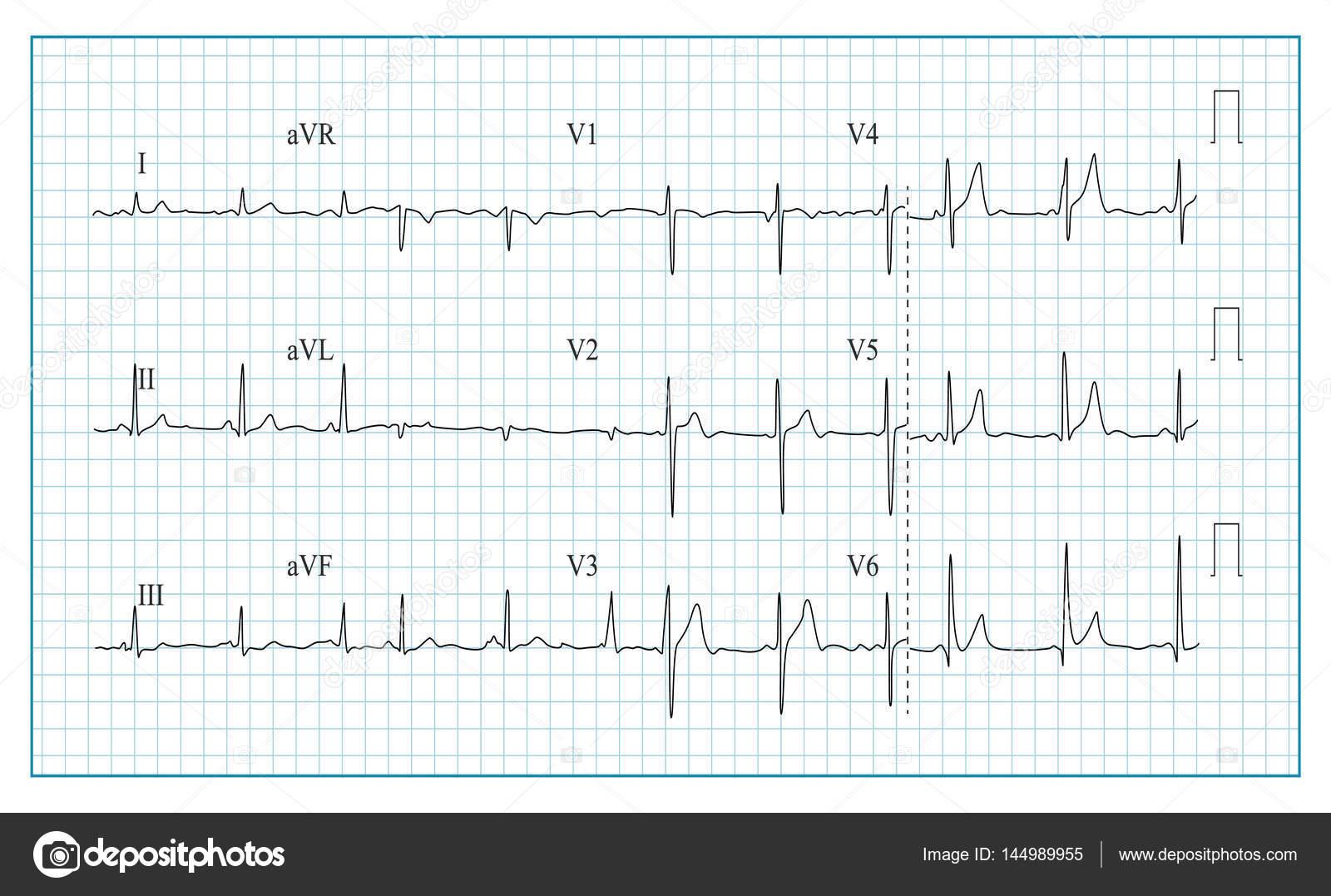 Herz EKG Diagramm Vektor. Darstellung der Wellenform in aufgegebenen ...