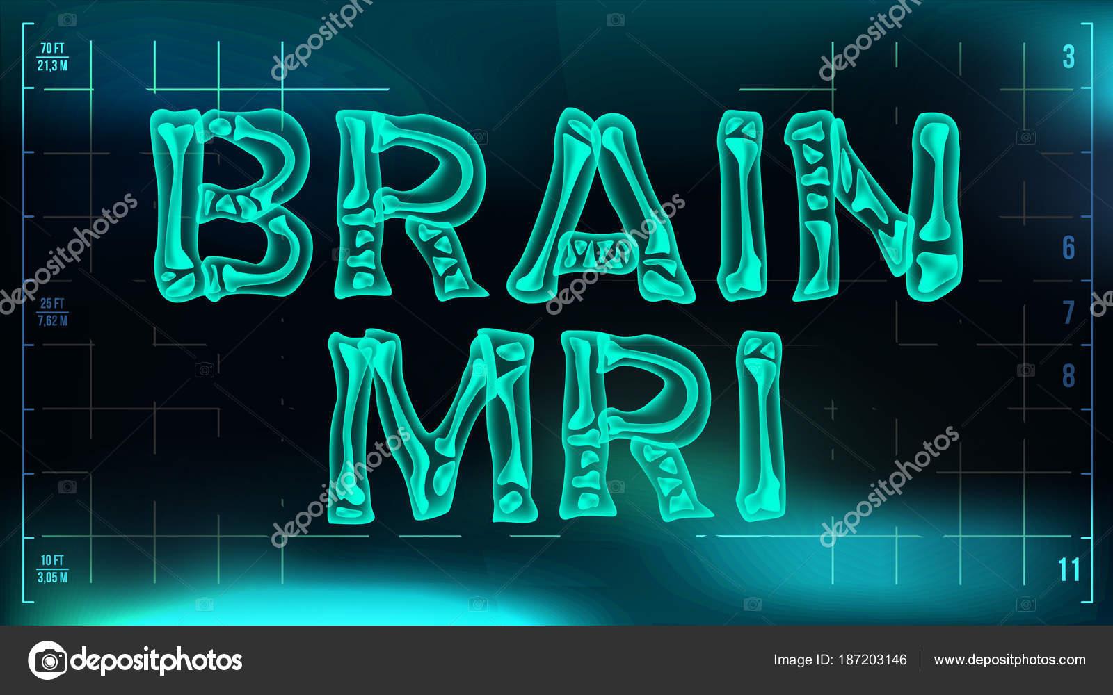 Gehirn-MRT-Banner-Vektor. Medizinischer Hintergrund. Transparente ...