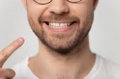 Zblízka oříznutý obrázek muž ukazující prstem na zubatý úsměv.