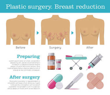 Plastic surgery breast reduction infographic
