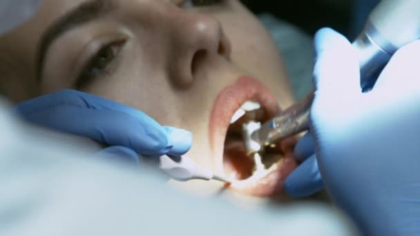 Medical dentist procedure of teeth polishing with cleaning from dental deposit and odontolith