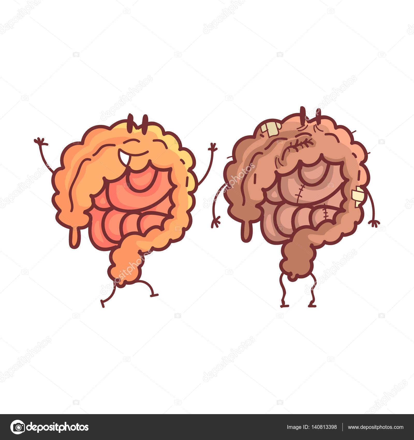 Dickdarm menschlichen inneren Organ gesund Vs ungesund, medizinische ...