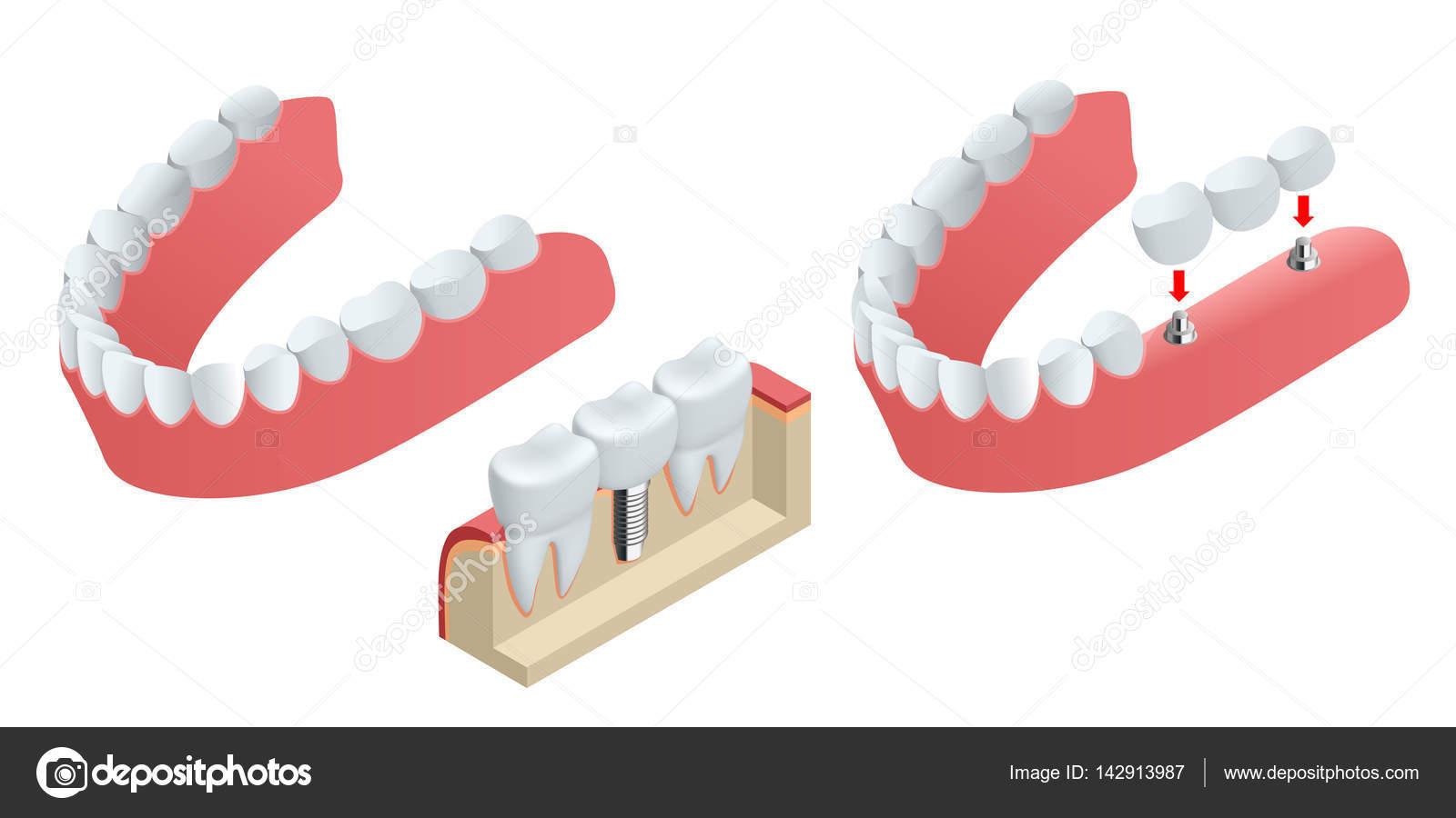 Implante humano isométrica de diente. Concepto dental. Los dientes ...