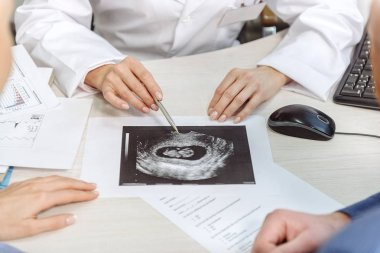 Doctor showing ultrasound picture to patients