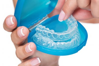 Female arms showing clear aligners in case