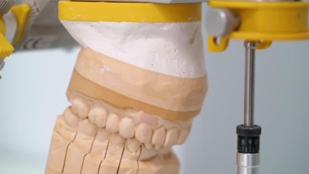 Jaw model in dental clinic