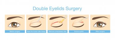 Procedures of double eyelids surgery.