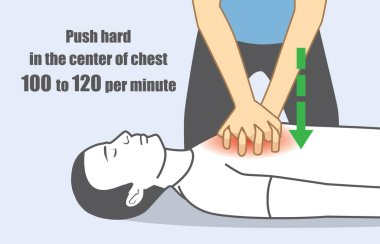 Hand push hard and fast in the center of chest.