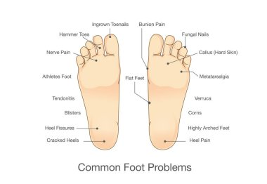 Common foot problems.