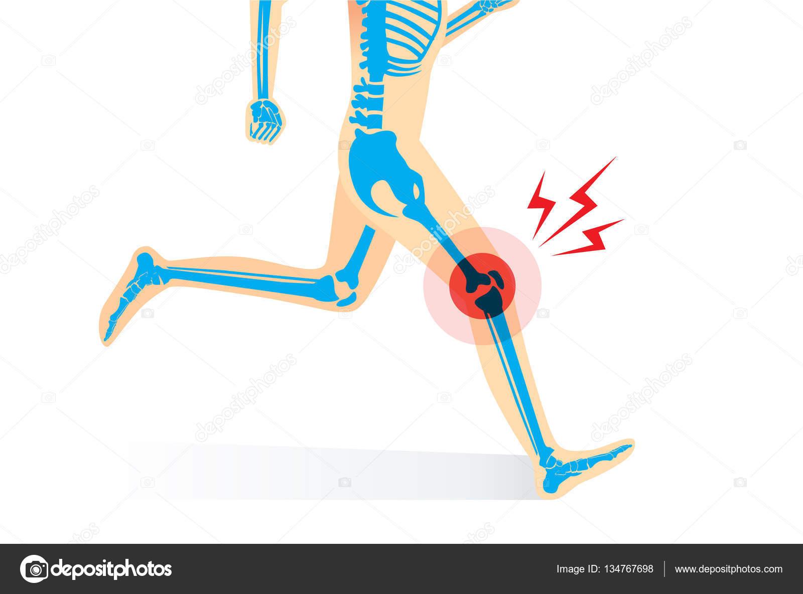 Verletzungen der Knie Knochen und Bein beim laufen — Stockvektor ...
