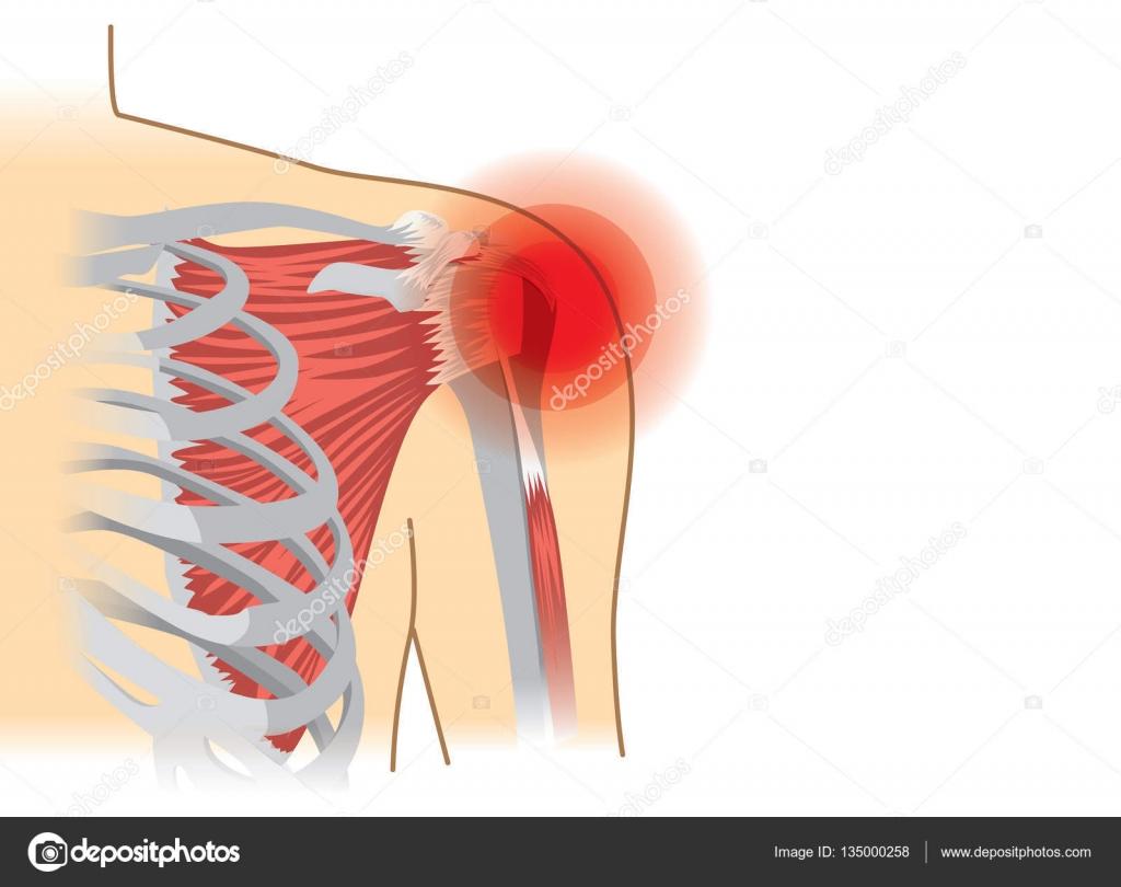 Menschlichen Schultermuskeln und Gelenke haben ein rotes signal ...