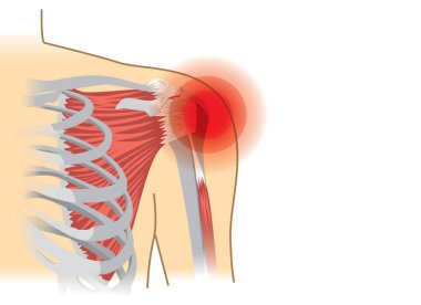 Human shoulder muscles and joints have a red signal.