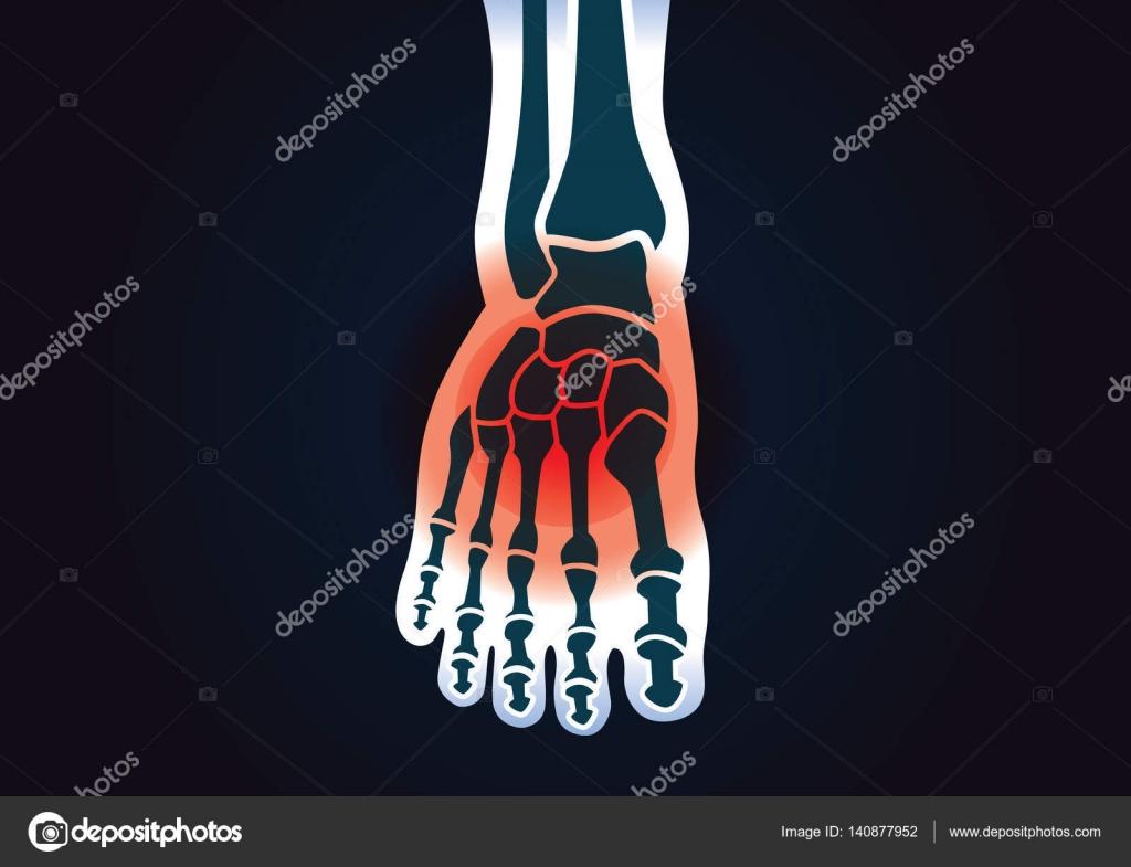 Hueso del pie humano tienen una señal roja — Vector de stock ...