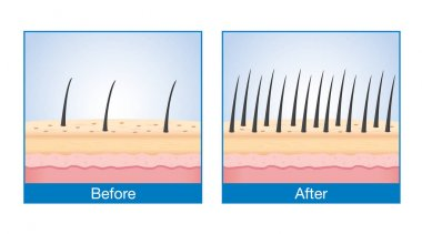 Hair on scalp before and after of treatment hair loss.