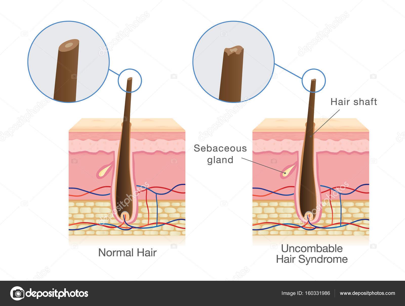 Diferencia del eje de pelo normal y pelo uncombable síndrome ...