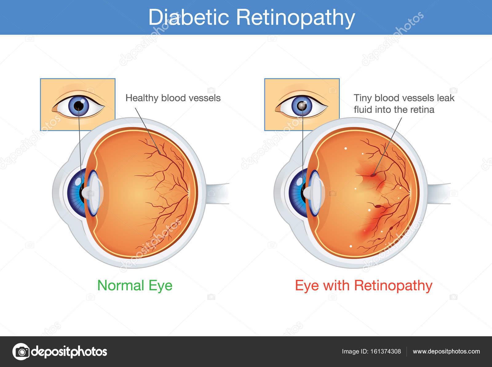 Anatomía del ojo normal y la retinopatía diabética — Archivo ...