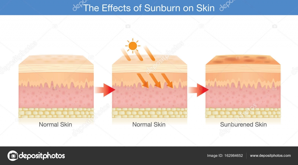 Cambio de la capa de la piel humana dañada por la luz del sol ...