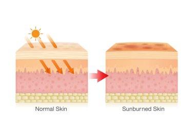 Effect of sunlight on skin.