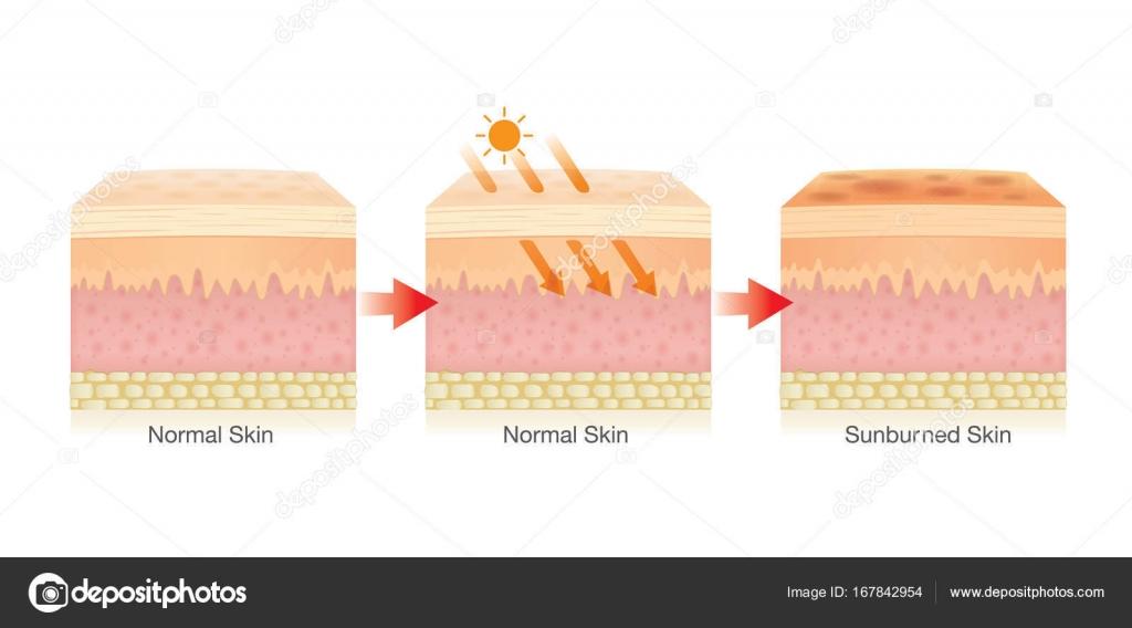 Paso de cambio de capa de la piel humana dañada por la luz del sol ...