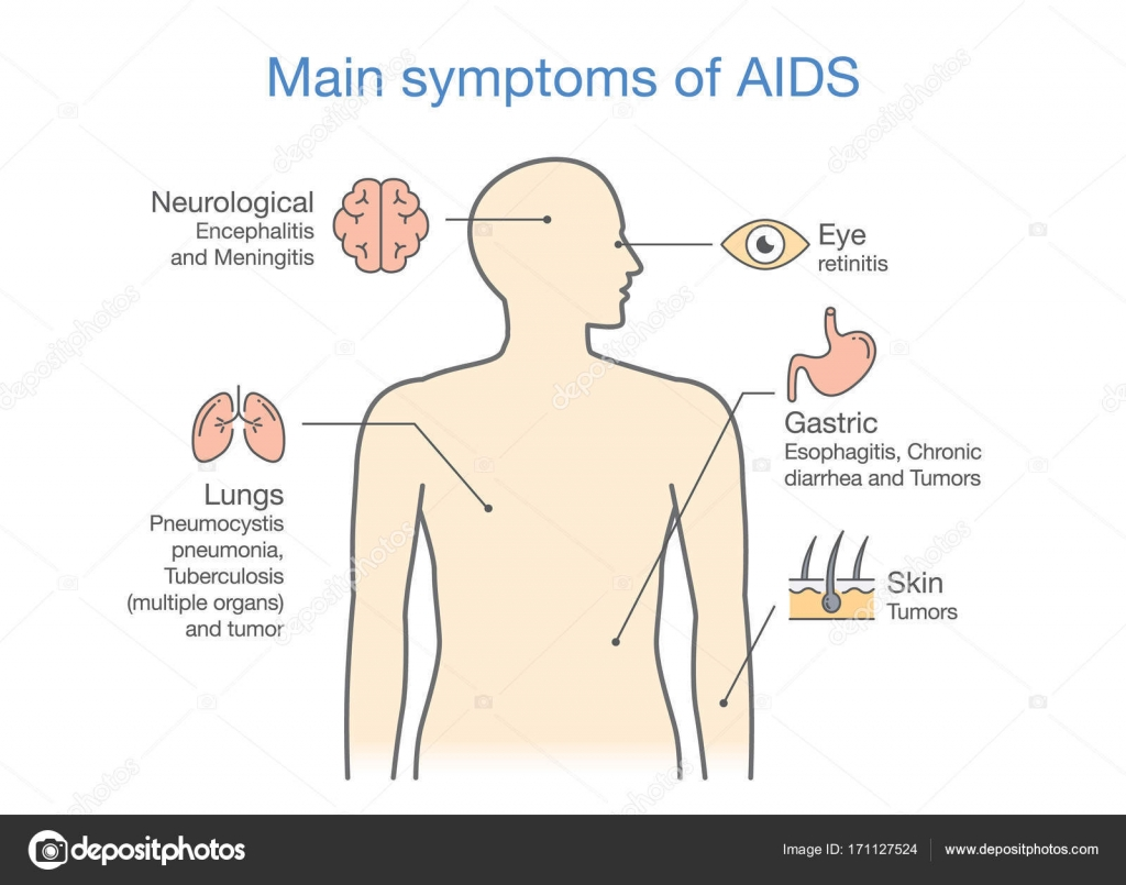 main symptom of acute hiv infection  illustration about diagram for  patient  — vector by solar22