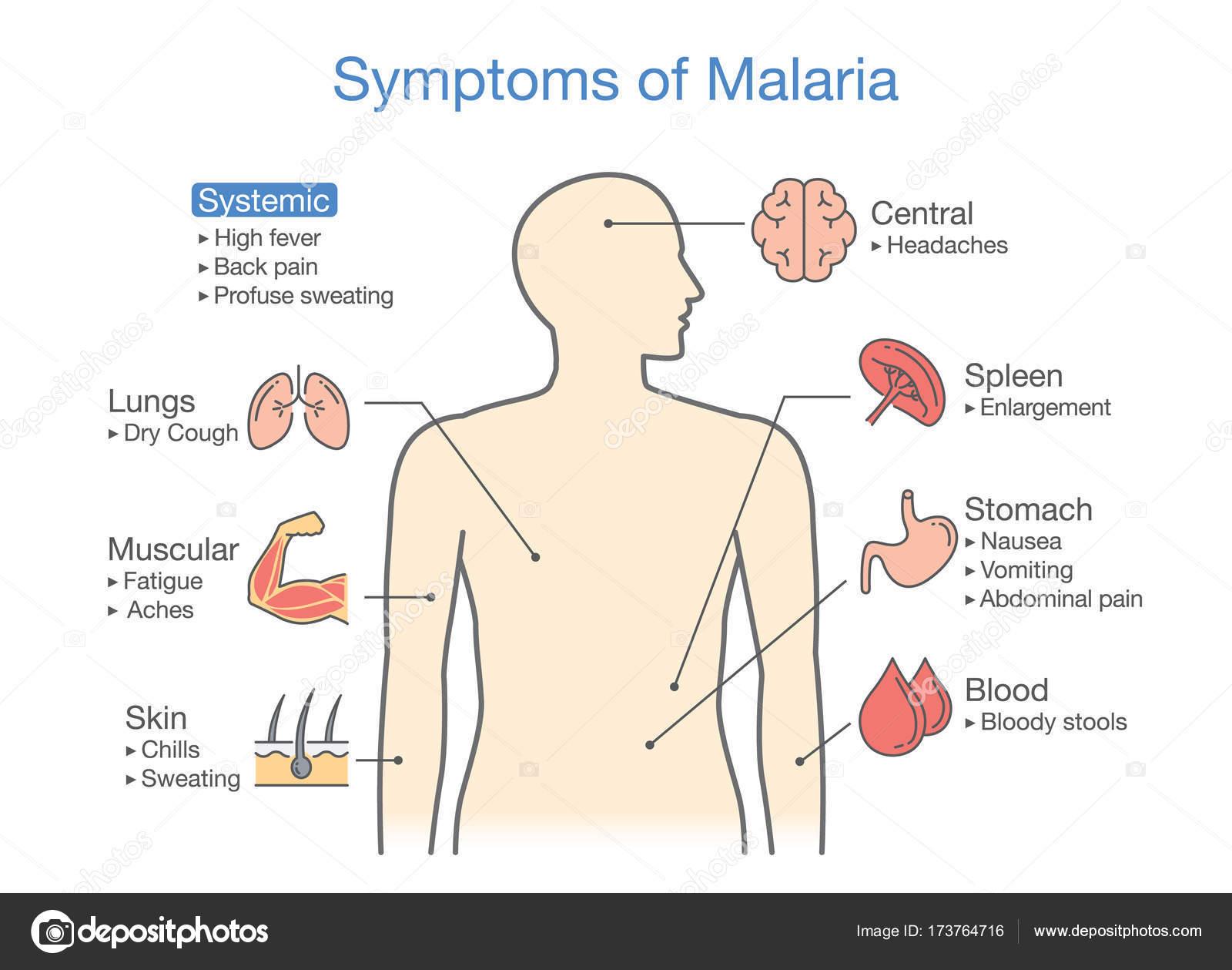 Diagrama para el paciente con síntomas de Malaria aparecen — Archivo ...
