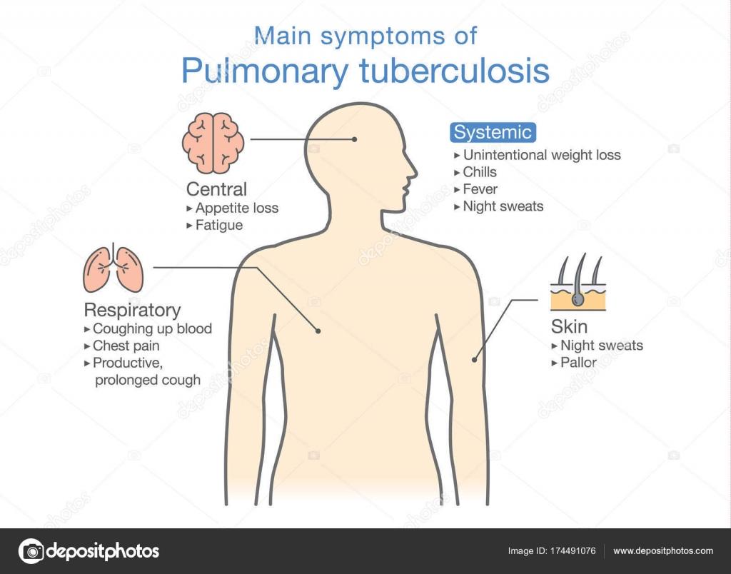 Belangrijkste Symptomen Van Longtuberculose Patiënt Stockvector