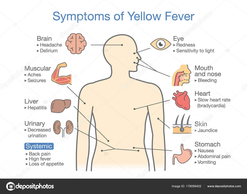 diagram of symptoms of yellow fever patient  illustration about disease  diagnosis – stock illustration