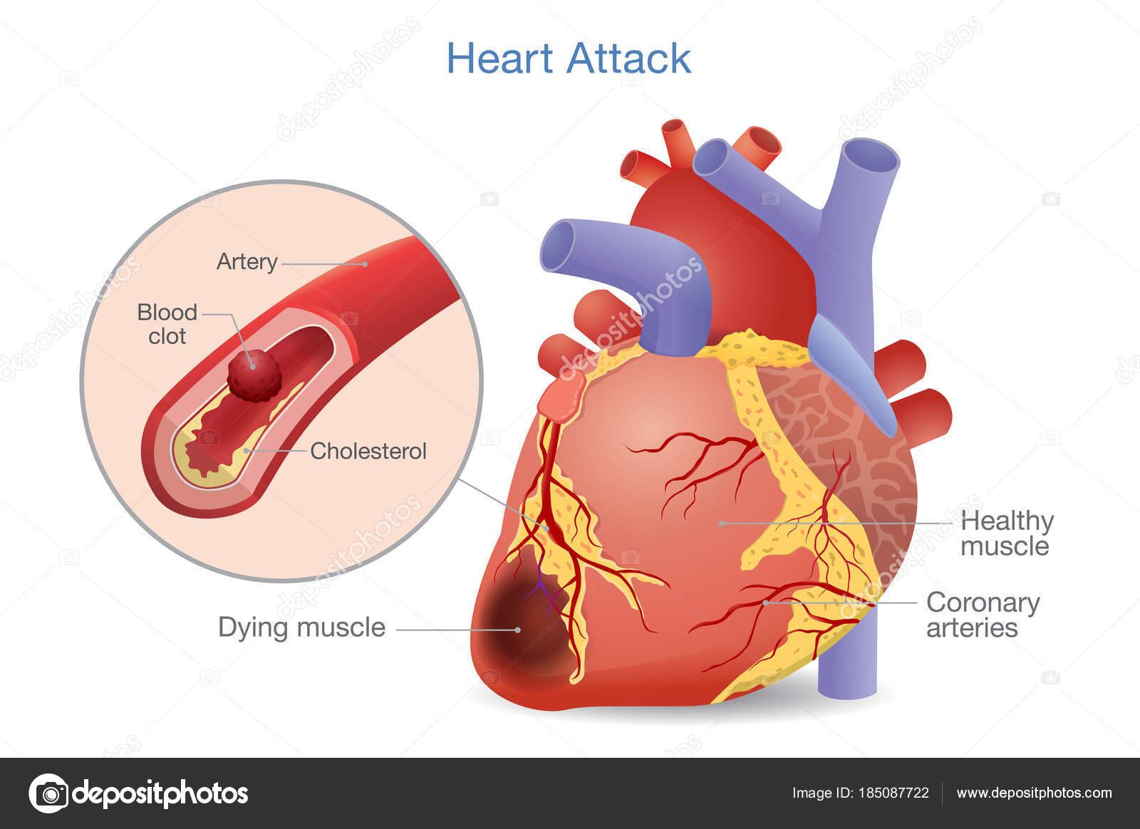 Illustration Arterial Thrombosis Blood Clot Develops Heart Attack