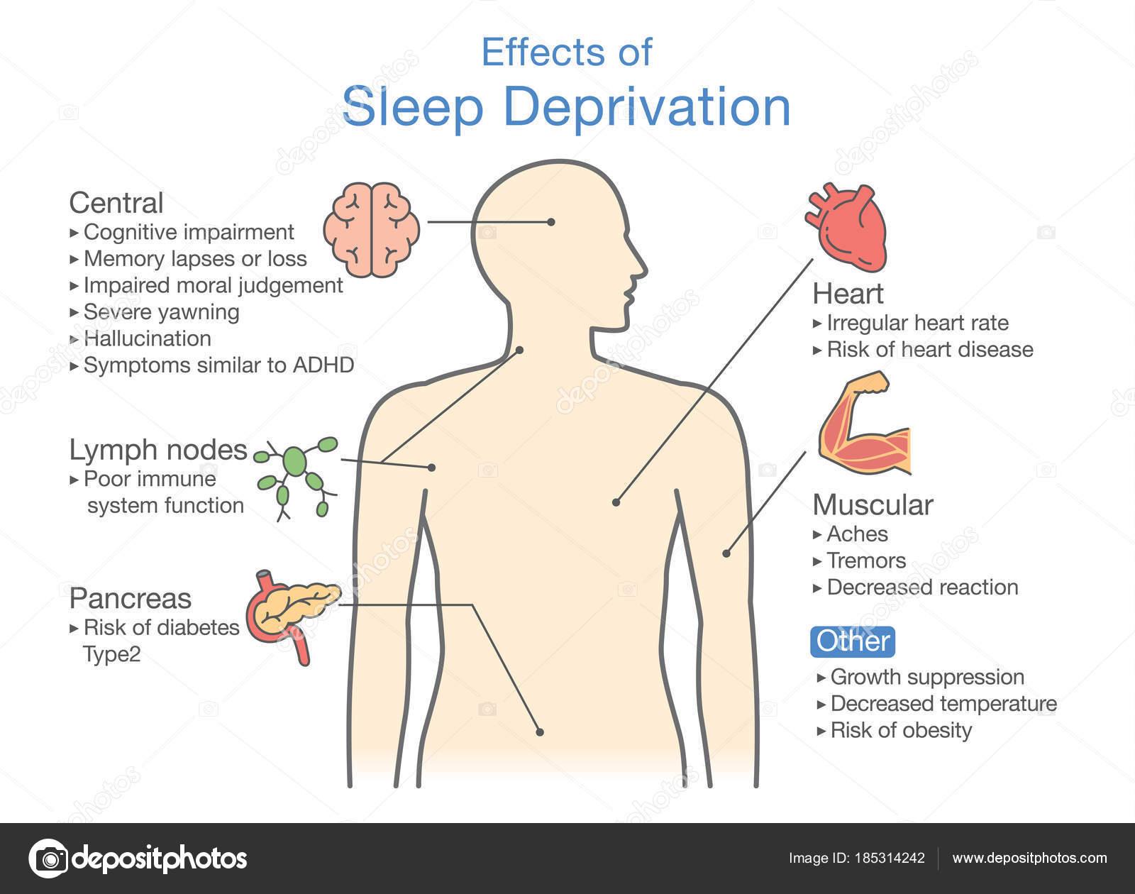 Diagrama Privación Efectos Del Sueño Ilustración Sobre Diagnóstico ...