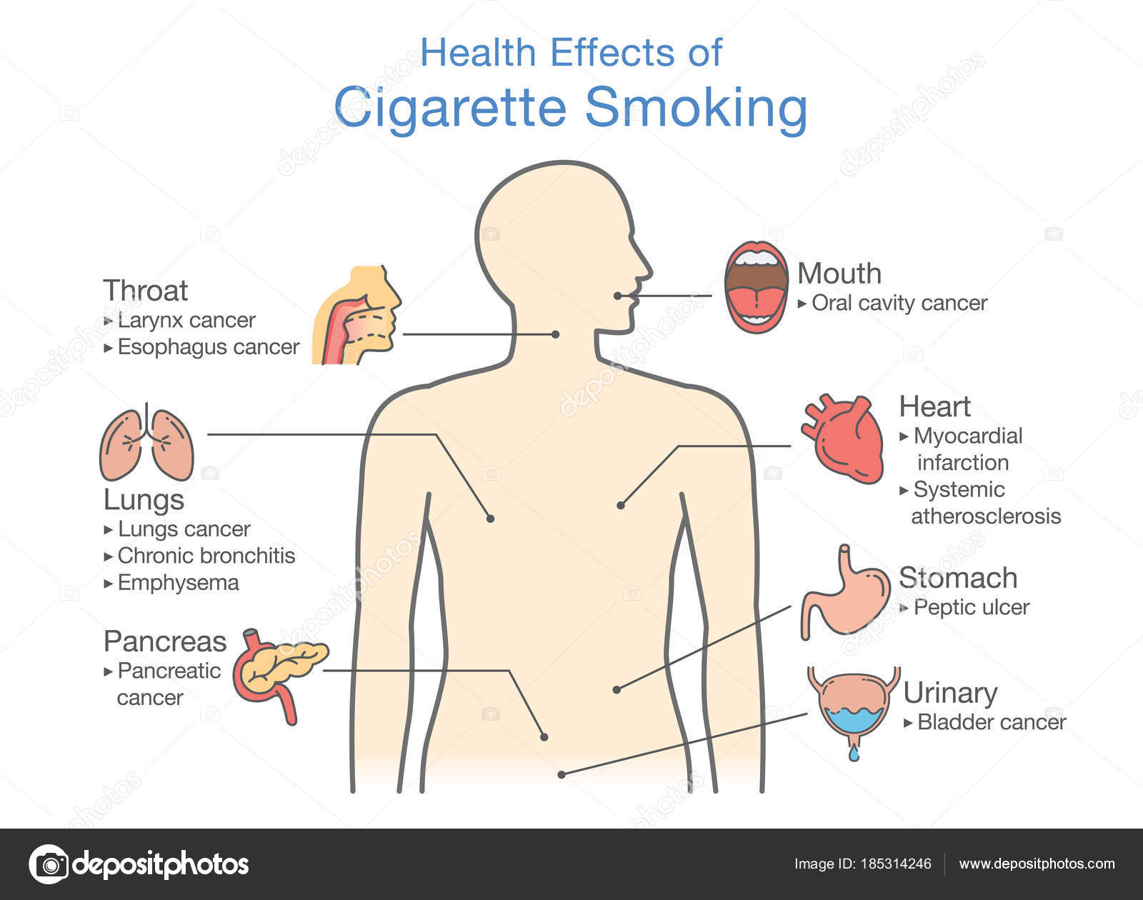 diagram about health effect of cigarette smoking  illustration about risk  of smokers – stock illustration
