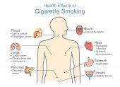 Ábra a dohányzás egészségügyi hatása. Illusztráció arról, hogy a dohányzók kockázata.