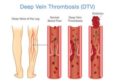 Medical Diagram of Deep Vein Thrombosis at leg area. Illustration about abnormally of blood floow.