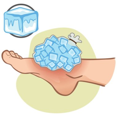 Illustration of first aid person caucasian, foot with ice bag, side view. Ideal for catalogs, information and medicine guides