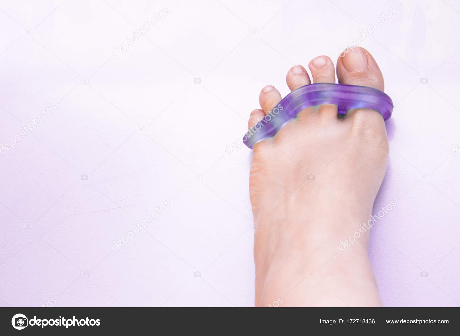 Pies de mujer con prótesis de silicona para separar los dedos del ...