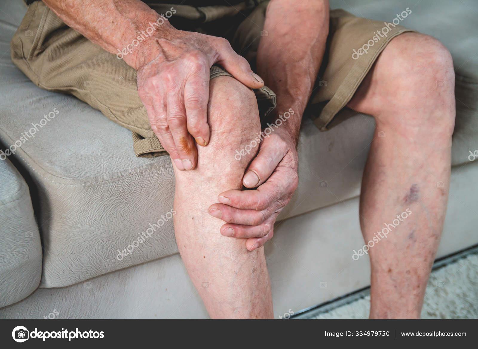stock foto vânătăi pe picioare cu varicoză