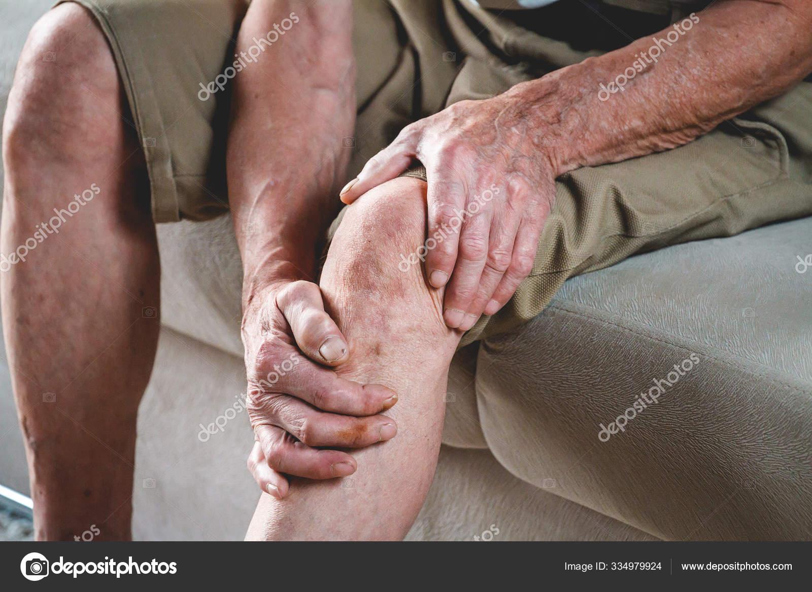 stock foto vânătăi pe picioare cu varicoză)