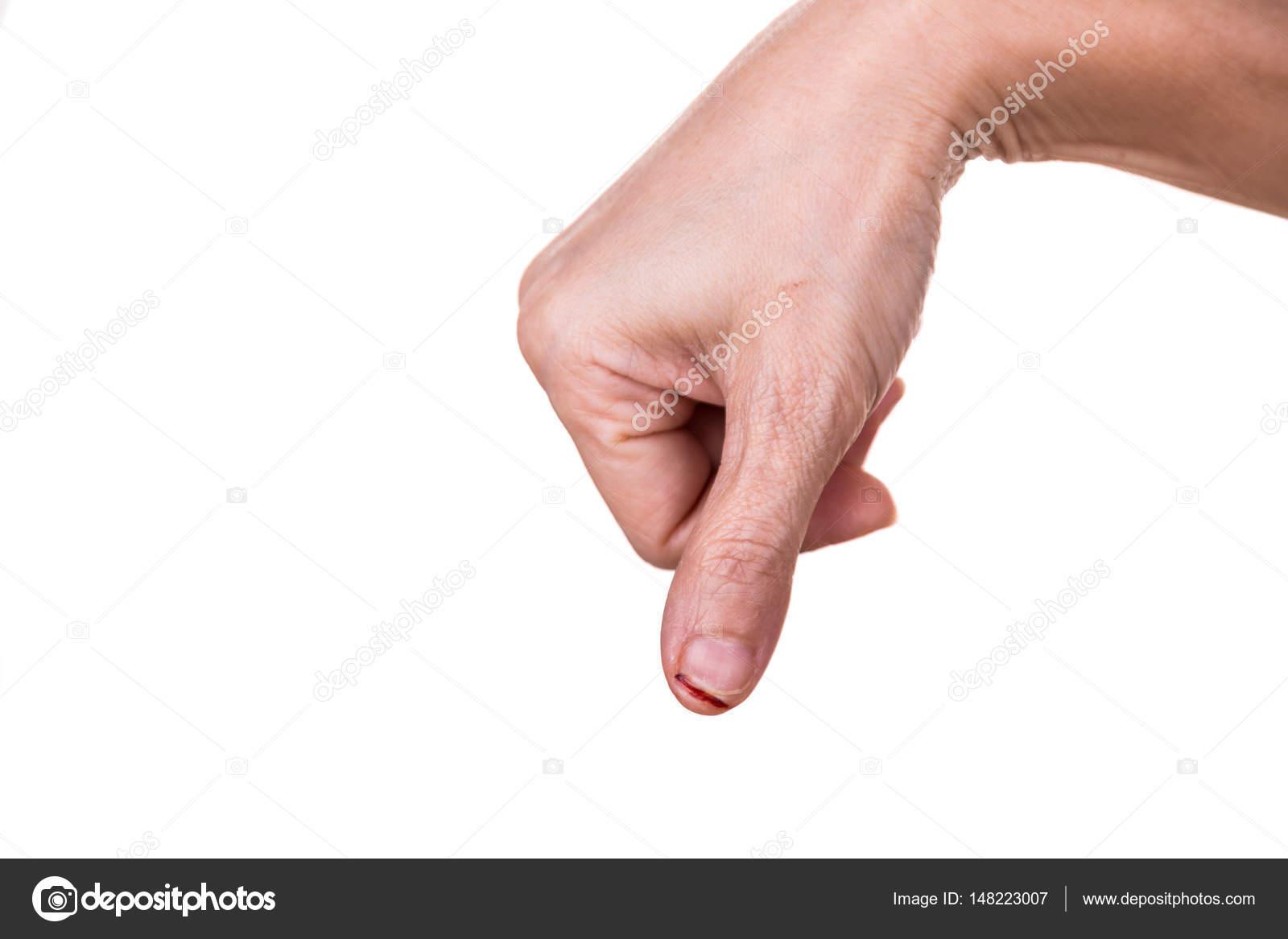 Parmak yaralanması