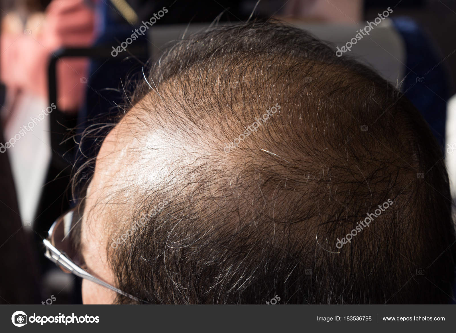 Close-up of balding and thinning hair of man revealing scalp ...