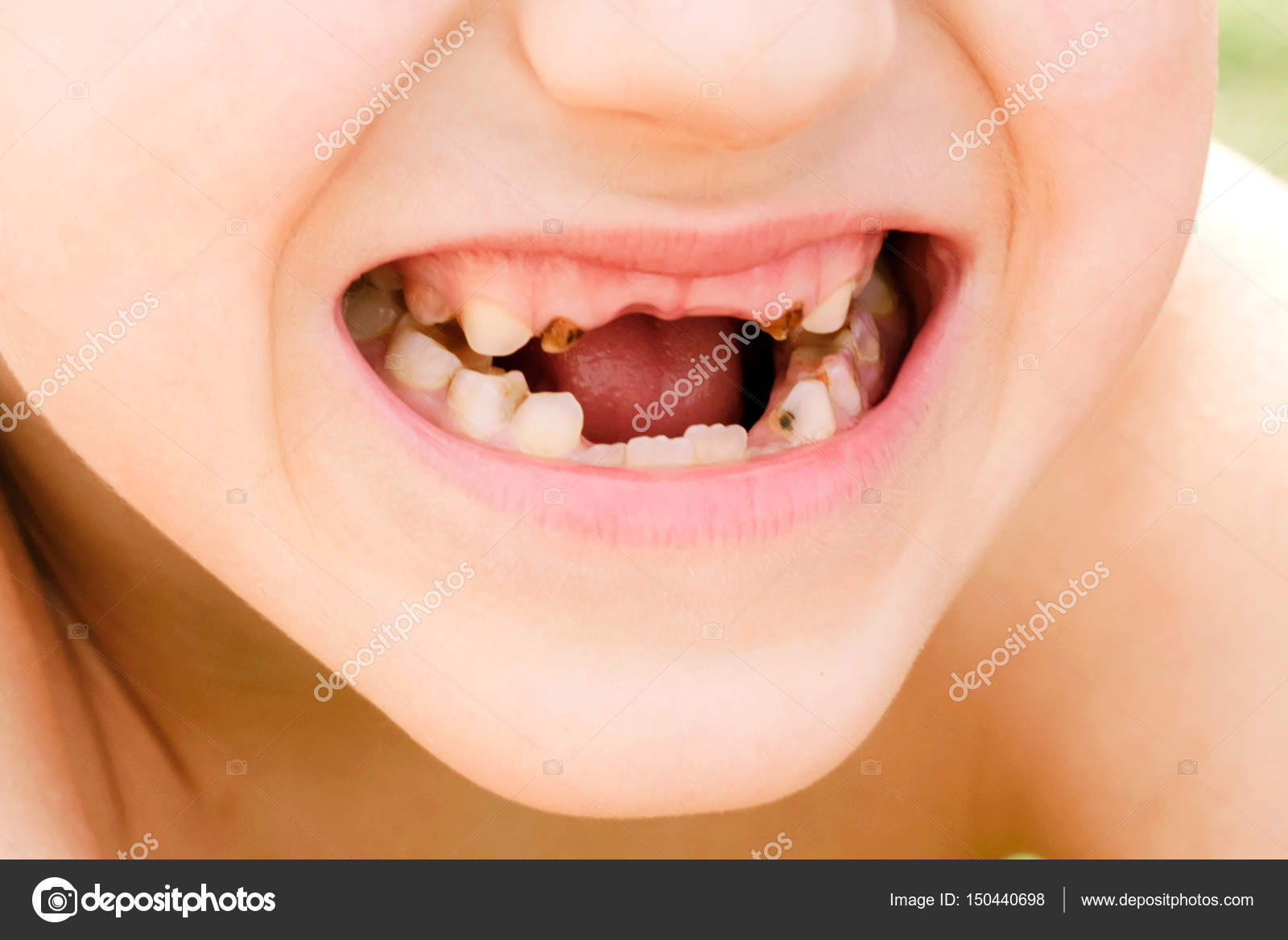 Disease Of Teeth Or Stomatology Stock Photo Zahar2000 150440698